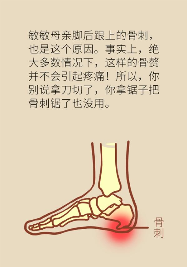 脚跟骨骨刺_足跟痛都是由骨刺引起的吗?带你了解跖筋膜炎--科普中国--人民网