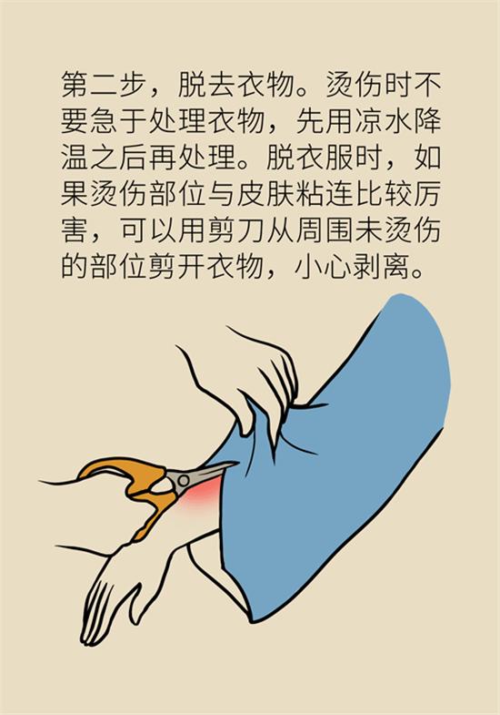 烧伤烫伤起了水疱,在家处理换药怎样操作?看李广学怎么说