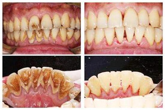 洗牙会让牙缝变大?不洗小心得这种疾病